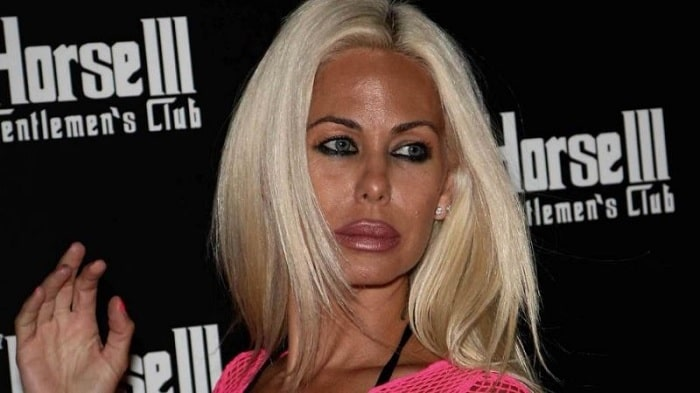 Shauna Sand Regretted her Plastic Surgery Which Was a Disaster